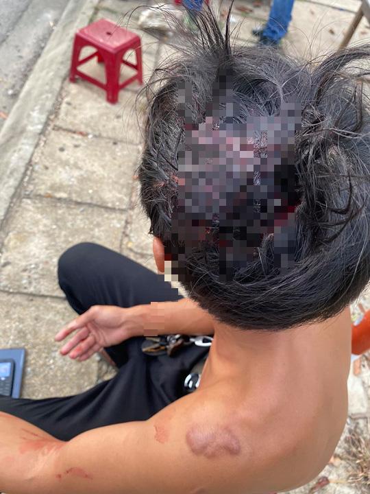 Clip: Tranh giành khách tại sân bay, 2 nhóm tài xế taxi đuổi đánh nhau bể đầu - Ảnh 3.