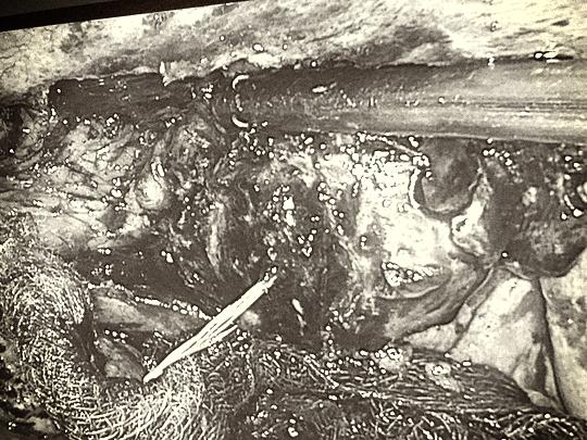 Người phụ nữ bị xương cá đâm thủng ruột, 10 ngày mới phát hiện - Ảnh 2.