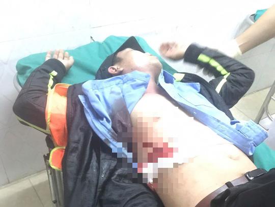 Nhân viên Trạm BOT Ninh Xuân bị đâm phải nhập viện - Ảnh 2.