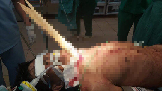 Cứu người đàn ông bị tai nạn hy hữu - thanh gỗ nửa mét đâm xuyên cổ - Ảnh 1.