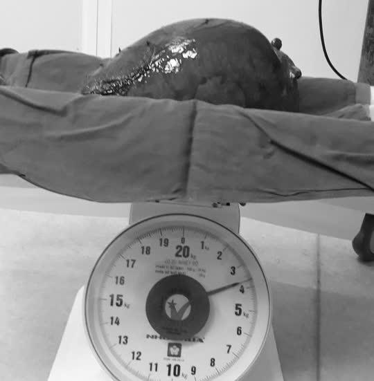 Khối u gần 4kg chèn ép nội tạng người phụ nữ - Ảnh 1.