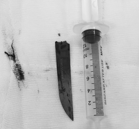 Young man hospitalized with a knife stabbed into the spine - Photo 2.