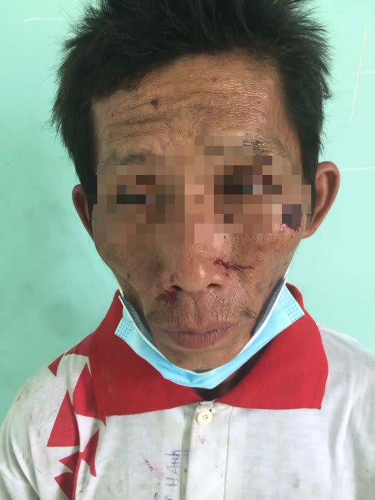 Bắt giữ nghi phạm gây cháy chi nhánh ngân hàng ở Kiên Giang - Ảnh 1.