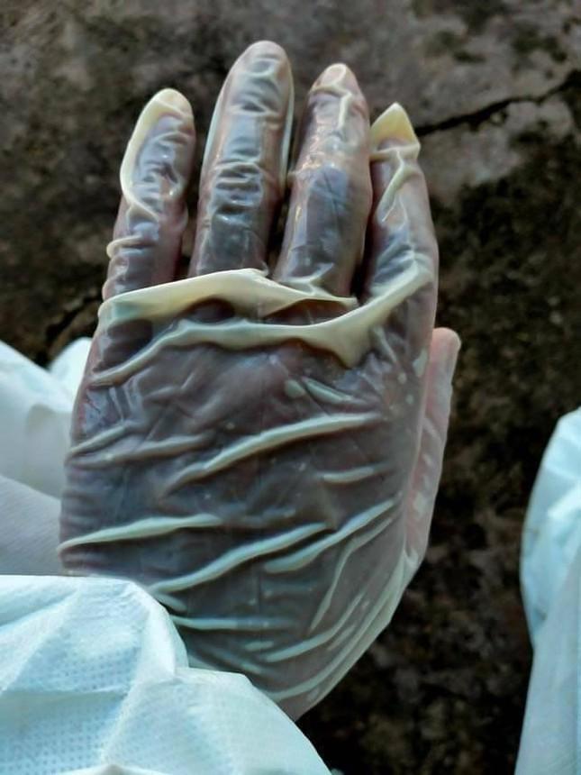 Những đôi bàn tay nhăn nheo, trắng bệch vì ngâm mồ hôi trong bộ đồ bảo hộ nơi tuyến đầu - Ảnh 2.