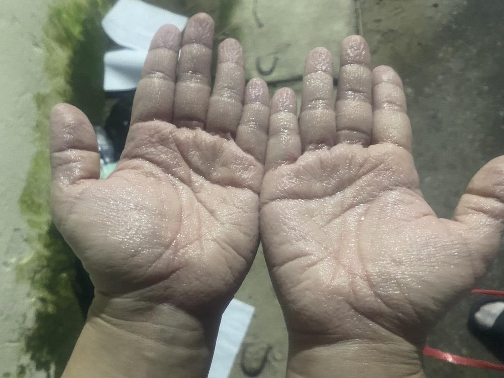 Những đôi bàn tay nhăn nheo, trắng bệch vì ngâm mồ hôi trong bộ đồ bảo hộ nơi tuyến đầu - Ảnh 4.