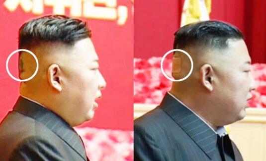 Ông Kim Jong-un bất ngờ xuất hiện với băng dán sau đầu - Ảnh 1.