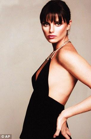 Người mẫu Ana Carolina Reston chết vì bệnh biếng ăn