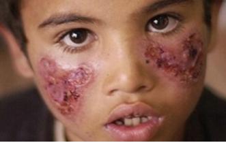 Khoảng 500 ca bệnh Leishmaniasis được ghi nhận ở Syria năm ngoái. Ảnh: Twitter