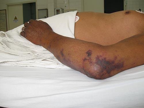 Người nhiễm liên cầu khuẩn lợn ngoài nguy cơ tử vong còn có thể bị điếc, bị mất chân tay...
