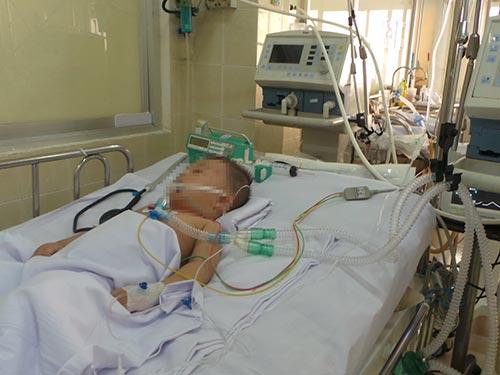 Trẻ té lầu được Bệnh viện Chợ Rẫy tiếp nhận điều trị