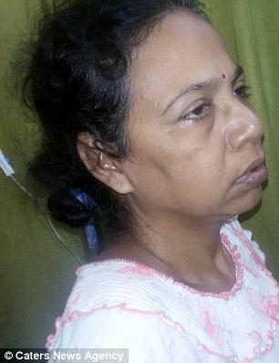 Bệnh nhân Mitani Mondal (51 tuổi)