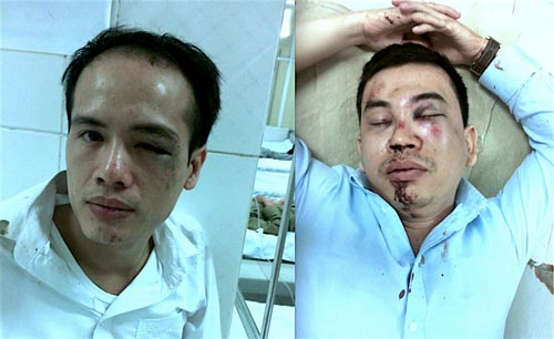 Luật sư Lê Văn Luân (trái) và luật sư Trần Thu Nam sau khi bị hành hung. (Ảnh lấy từ Facebook của luật sư Trần Thu Nam)