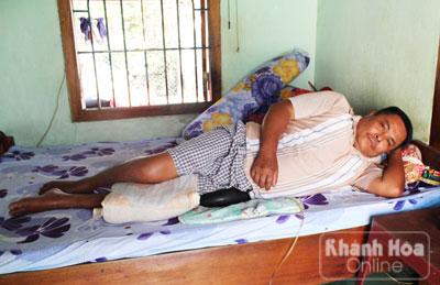 Ông Nguyễn Văn Đông bị tàn phế sau vụ bị đá đè