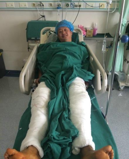 Anh từng chấn thương nặng cả hai chân