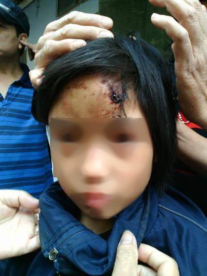 Bé gái Vũ Thị P., khi được lực lượng chức năng giải cứu khỏi ngôi nhà 2 lần khóa trong chùa