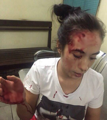 Chị Nguyễn Thị Cẩm Tú (vợ anh Phong) bị nhóm đối tượng lạ mặt đánh trọng thương (ảnh gia đình cung cấp)