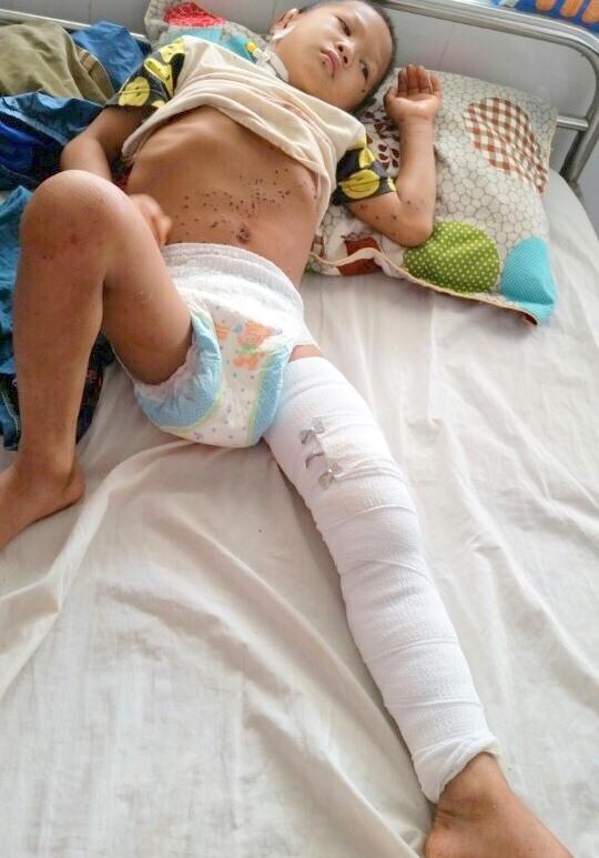 Bé Nhảy đang được điều trị tại Bệnh viện Đa khoa huyện Đắk Mil