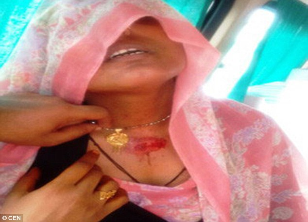 Mặt dây chuyền chắn viên đạn trên cổ cô Shabnam. Ảnh: CEN