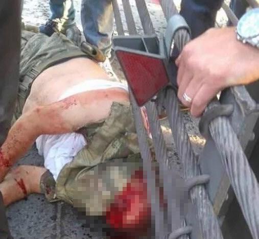Lính của phe đảo chính bị đánh trọng thương. Ảnh: Mirror