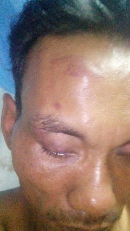 Người đàn ông tâm thần bị bầm mặt sau khi rời trụ sở công an