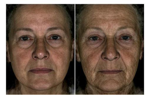 Bên trái là hình một cụ bà 70 tuổi trông trẻ hơn tuổi, còn bên phải thì ngược lại Ảnh: DAILY MAIL