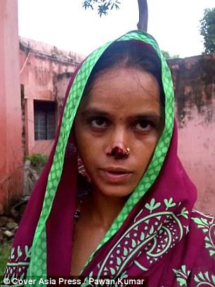 Gia đình Kamlesh quá nghèo nên hiện không thể chi trả các ca phẫu thuật chỉnh hình mũi cho cô.