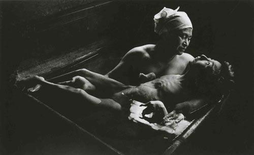 Người mẹ tắm cho đứa con mắc bệnh Minamata Ảnh: LIFE