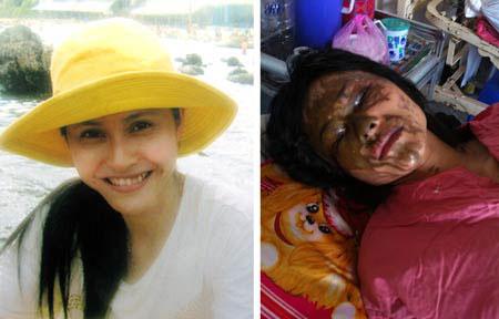 Nữ sinh ngành y trước và sau khi bị tấn công
