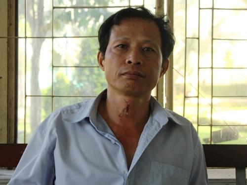 Lâm Tiến Dũng - kẻ tấn công gia đình anh Nguyễn Quốc Tuấn sau đó được chứng nhận là bị tâm thần