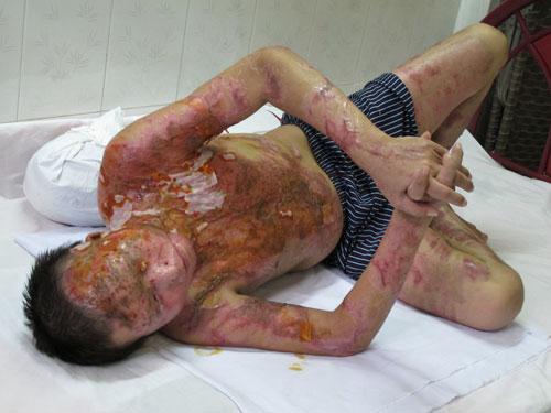 Anh Nguyễn Quốc Tuấn (ngụ quận Gò Vấp) bị thương tật 96% và mù vĩnh viễn