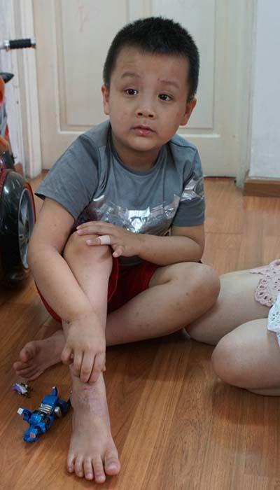Cậu bé Việt Nam đầu tiên được tài trợ chữa trị viêm da cơ địa
