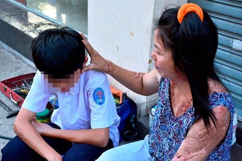 Chị Vũ Thị Loan (36 tuổi; ngụ quận Tân Bình, TP HCM) bị tạt axít vào năm 2013. Suốt 3 năm qua, hung thủ vẫn nhởn nhơ ngoài vòng pháp luật