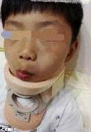 Một trong những đứa trẻ bị thương. Ảnh: CEN