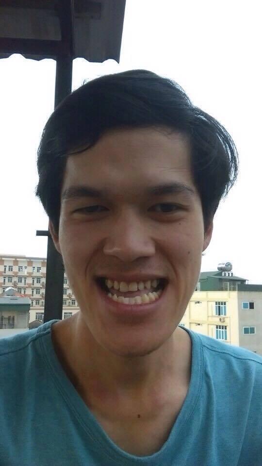 Gương mặt chàng trai trước và sau phẫu thuật