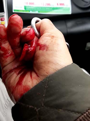 Ngón tay bị dập nát của nhà báo Đỗ Doãn HoàngẢnh: Cao Nguyên