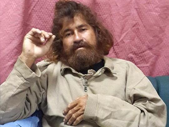 Ông Salvador Alvarenga lúc vừa được cứu sống. Ành: AP