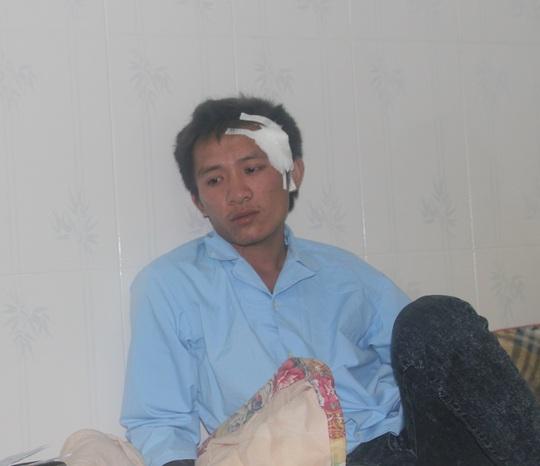 Anh Hà Văn Kiên, một công nhân may mắn thoát chết, chưa hết bàng hoàng sau vụ tai nạn