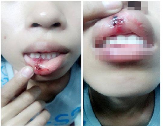 Cô gái tố bị một người đánh rách cả môi (ảnh do nhân vật trong clip cung cấp)