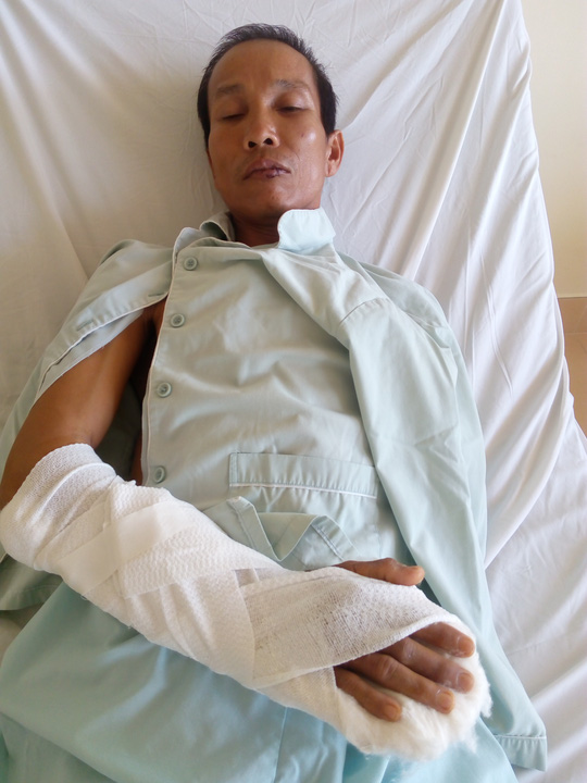Nạn nhân đang được điều trị tại bệnh viện