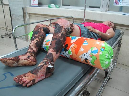 Nhiều lá cây còn dính vào đôi chân của nạn nhân sau khi chữa phỏng