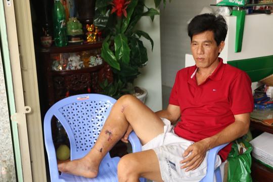 Ông Phong, chủ xe khách đã bị chấn thương sau vụ tai nạn nói trên.