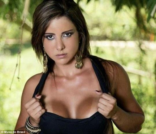 Người mẫu Raquel Santos, 28 tuổi, thiệt mạng sau phẫu thuật tiêm chất độn vào mặt
