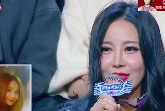 Cô Yu Ning trước và sau phẫu thuật thẩm mỹ. Ảnh: cqdst.com