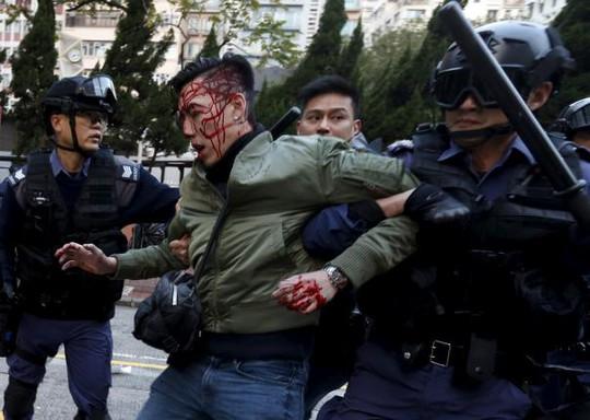 Một người biểu tình bị thương bị cảnh sát bắt đi rạng sáng 9-2. Ảnh: Reuters
