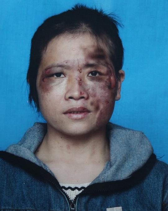 Chị Nguyễn Thị Hồng tố cáo những vết thương chi chít trên mặt là do chồng bạo hành