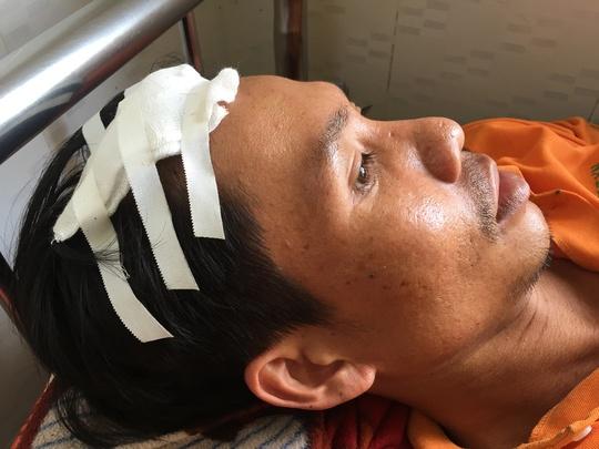 Anh Cao Văn Y bị chém phải khâu nhiều mũi