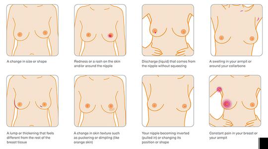 Các dấu hiệu thường gặp của ung thư vú.
