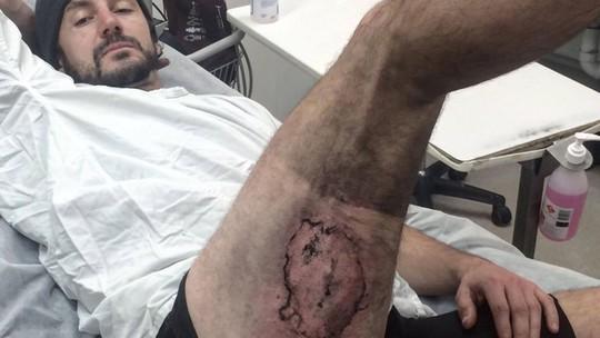 Gareth Clear bị bỏng nặng sau khi chiếc iPhone 6 phát nổ. Ảnh: Sky