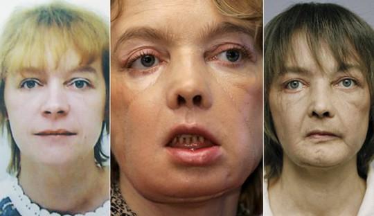 Bà Isabelle Dinoire trước và sau khi được ghép mặt. Ảnh: BBC