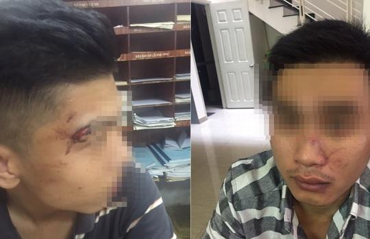 Đặng Văn Q. (20 tuổi, quận Tân Bình) và Ngô Tùng L. (21 tuổi, ngụ quận 5).